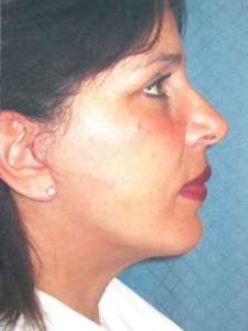 Eye Lift - Blepharoplasty Patient 26561 After Photo # 2