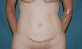 Mini Tummy Tuck Patient 65699 Before Photo # 1