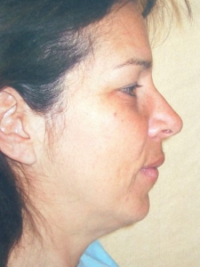 Face Lift and Neck Lift Patient 30136 Before Photo # 1