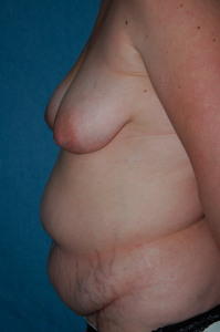 Tummy Tuck Patient 36881 Before Photo # 5
