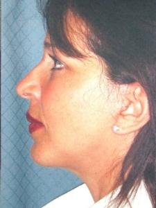 Face Lift and Neck Lift Patient 30136 After Photo # 8