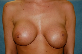 Breast Revision - (Breast Redo) Patient 66187 Before Photo # 3