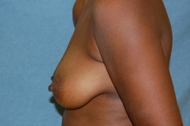 Breast Augmentation Patient 26729 Before Photo # 5