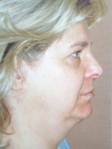 Face Lift and Neck Lift Patient 33637 Before Photo # 1