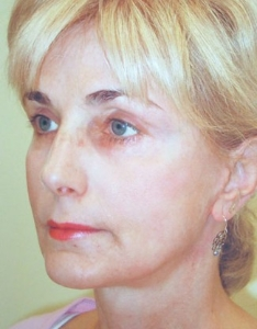 Face Lift and Neck Lift Patient 40143 After Photo # 4
