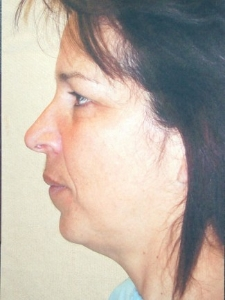 Face Lift and Neck Lift Patient 30136 Before Photo # 7
